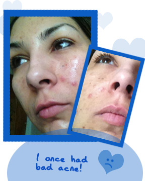 proactiv renewing cleanser review before Proactiv Renewing Cleanser Review   Acne Skin Care
