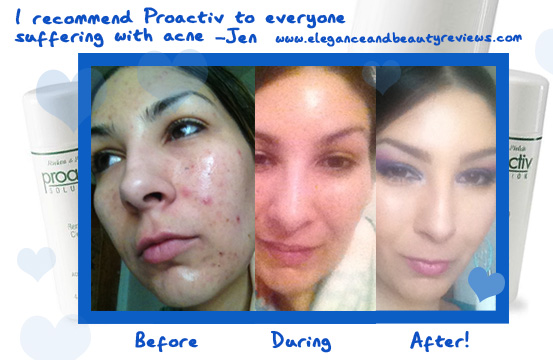 proactiv review before and after photos Proactiv Renewing Cleanser Review   Acne Skin Care