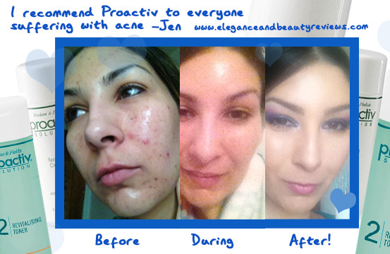 proactiv review before and after toner Proactiv Revitalizing Toner – Acne Skin Care