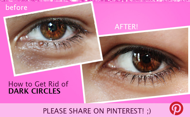 how to ger rid of dark under eye circles 3 How to Get Rid of DARK CIRCLES under eyes fast Naturally