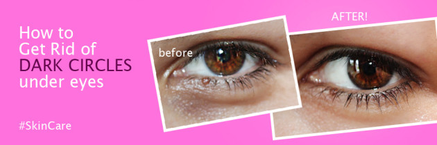 How to Get Rid of DARK CIRCLES under eyes fast Naturally
