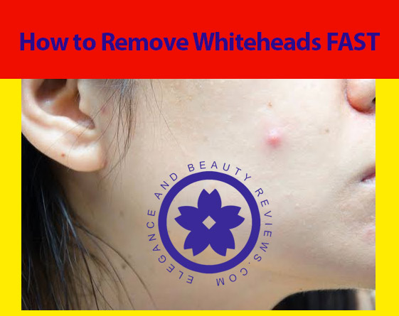How do you get rid of whiteheads overnight