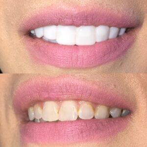 shiny smile veneers price