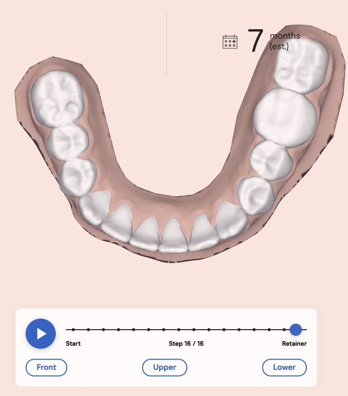 candid aligners before and after