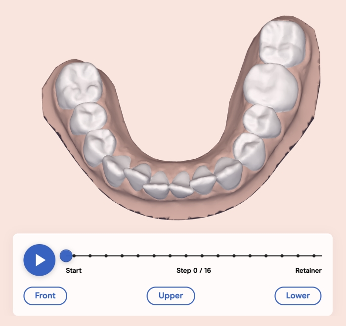 Candid Clear Aligners Review before and after photos