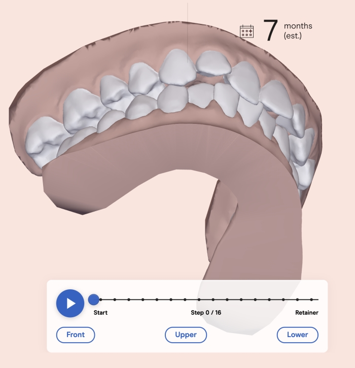 Candid Clear Aligners Review